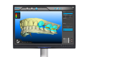 State of the Art Digital Dentistry:  iTero™ in Richmond Hill, GA